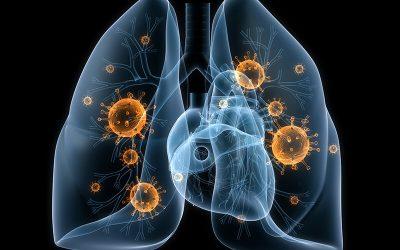 Zum Thema Lungenentzündung (Pneumonie)
